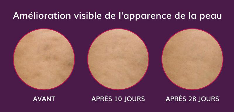 amélioration visible de l'apparence de la peau