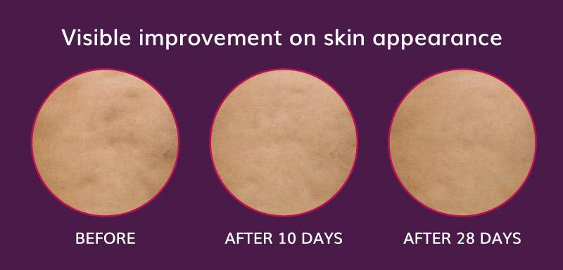 miglioramento visibile dell'aspetto della pelle